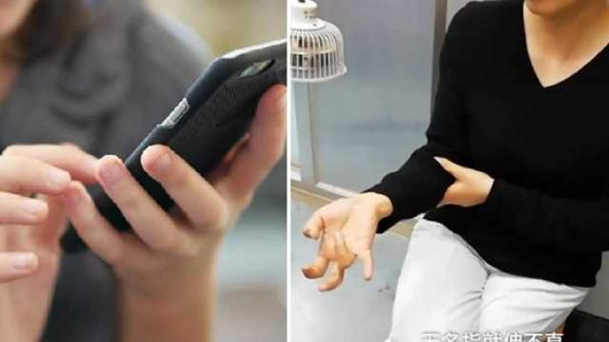 Смартфон призвів до проблем з рукою