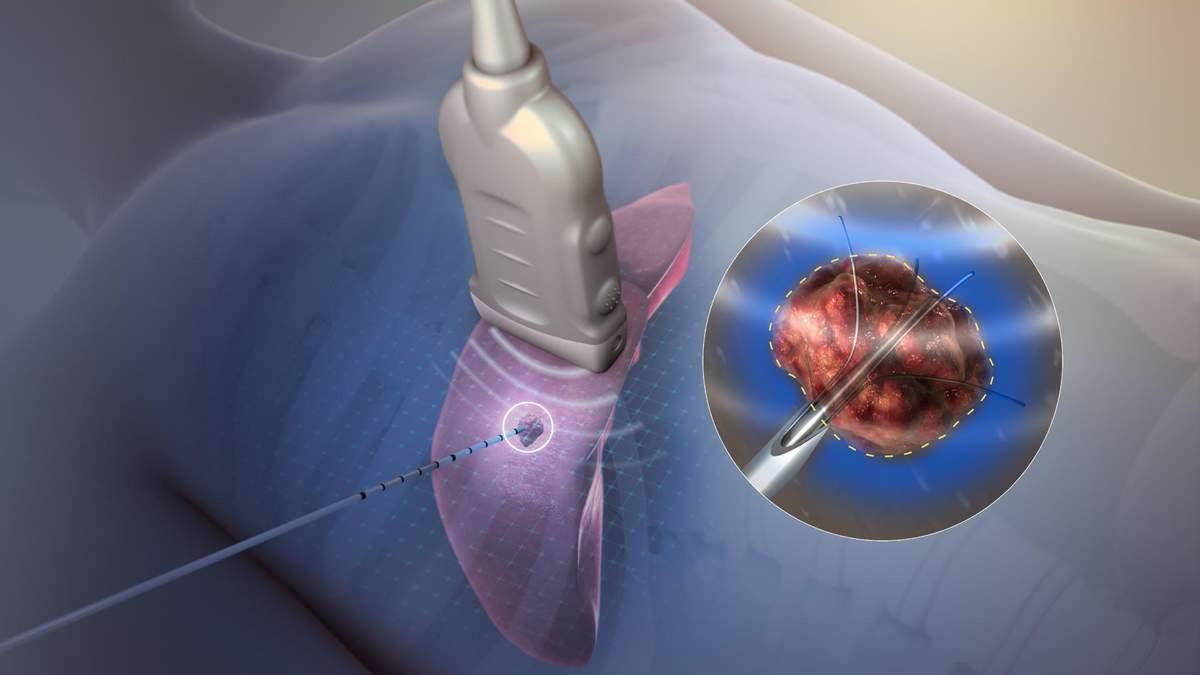 У США розробили метод анестезії за допомогою радіохвиль