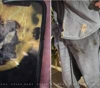 iPhone X взорвался в кармане владельца